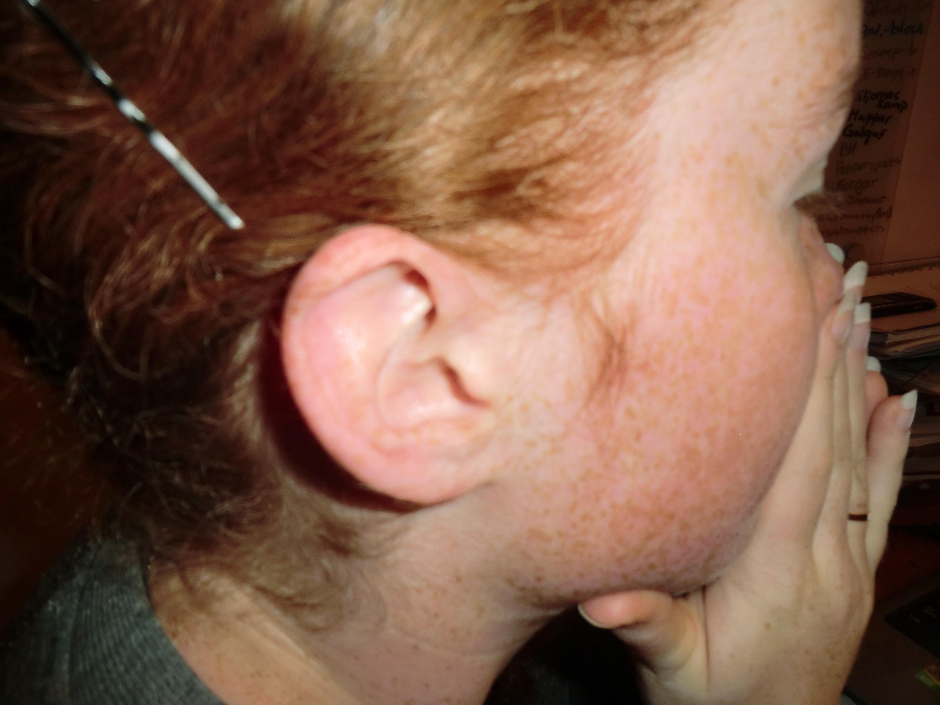 Homeopati bättre än antibiotika vid akut öroninflammation