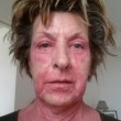 Homeopati botade Siws psoriasisartrit